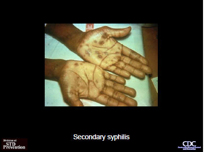 Treponema Pallidum (Syphilis) - Infectious Disease and Antimicrobial