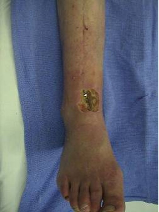 Osteomyelitis - Infectious Disease and Antimicrobial Agents