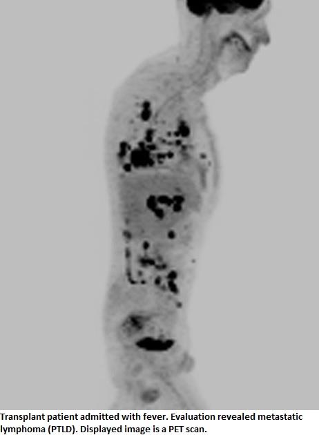 Pancreatic cancer urine. Pancreatic cancer and jaundice Neuroendocrine cancer jaundice