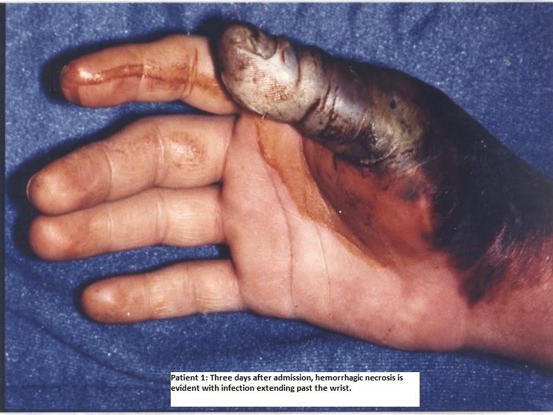 Conditions that Ciprofloxacin Oral Treats