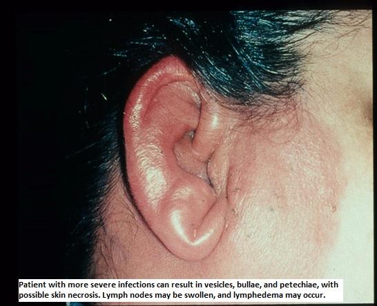 prednisone treatment for hives