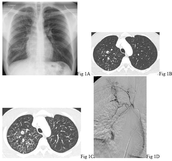 Pulmonary cryptococcosis ct findings in immunocompetent patients