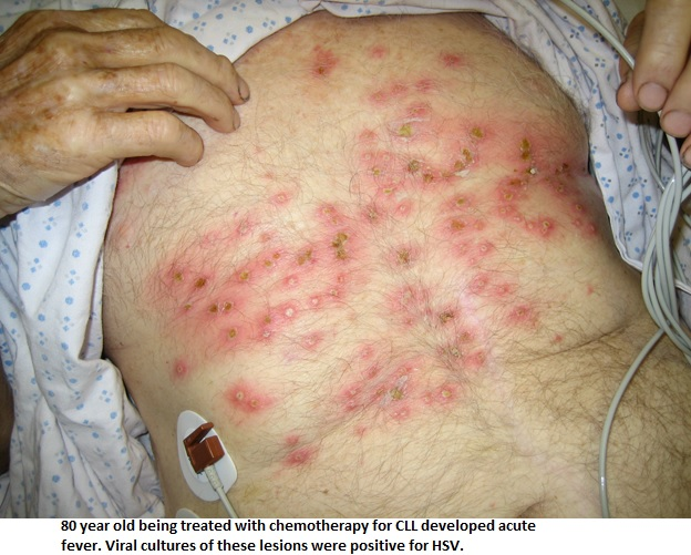 Herpes simplex or varicella zoster infections in immunocompromised patients (HIV) 2