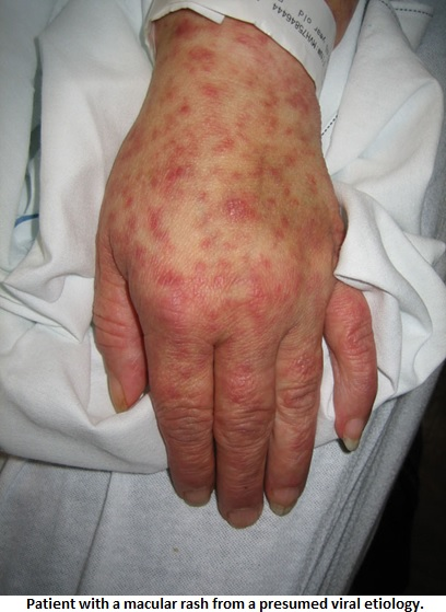 Fever and Rash - Infectious Disease and Antimicrobial Agents