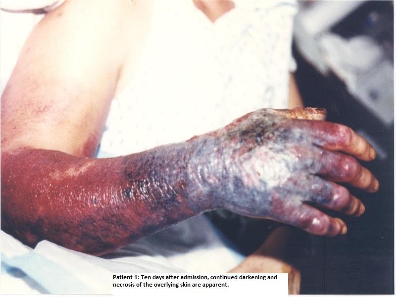 bacterial folliculitis #11