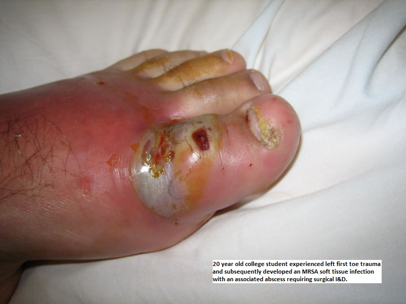 Cellulitis Infectious Disease And Antimicrobial Agents