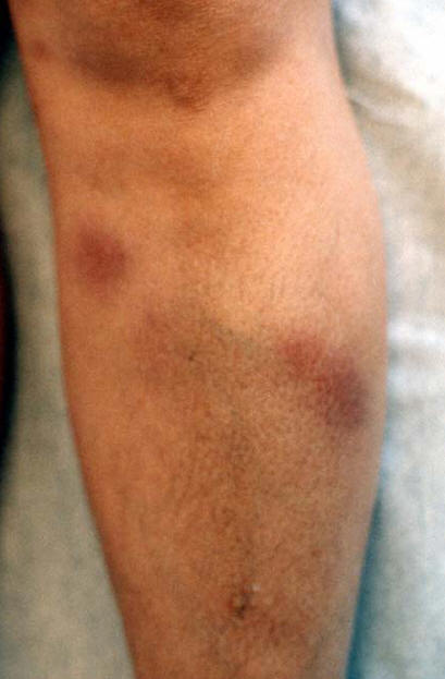 Photo Quiz: Persistent Pruritic Papules - American Family ...