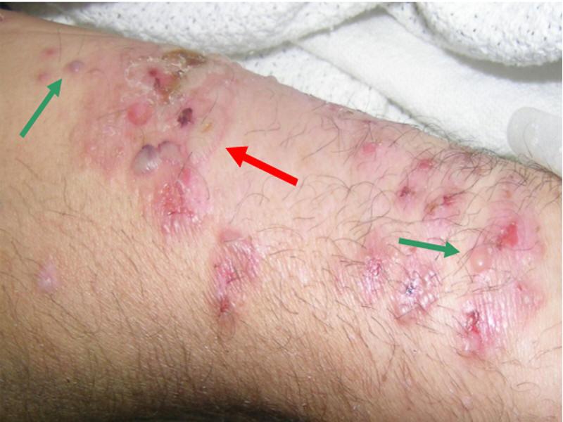 Valley fever skin rash