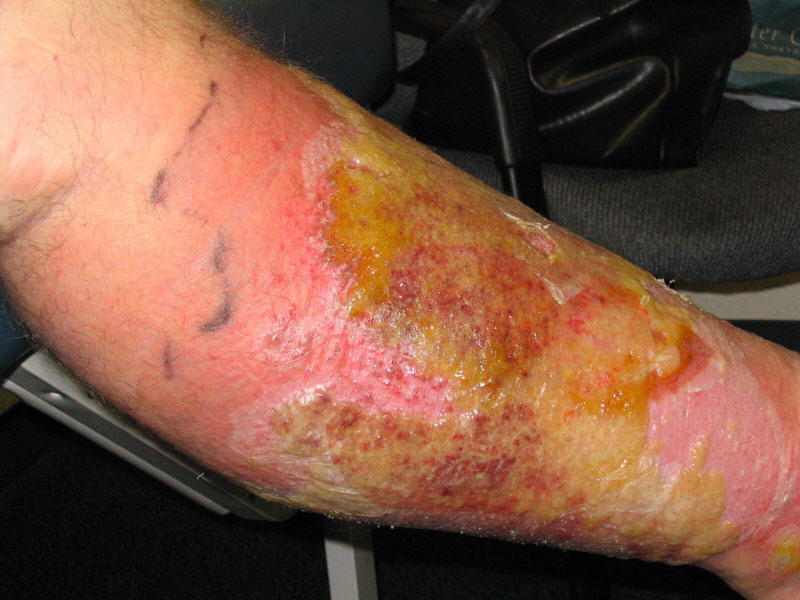 Printout Diabetic Foot Infections Assessment