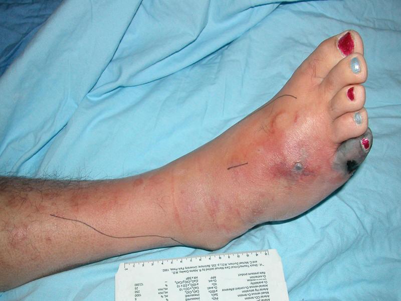 Printout Diabetic Foot Infections Management