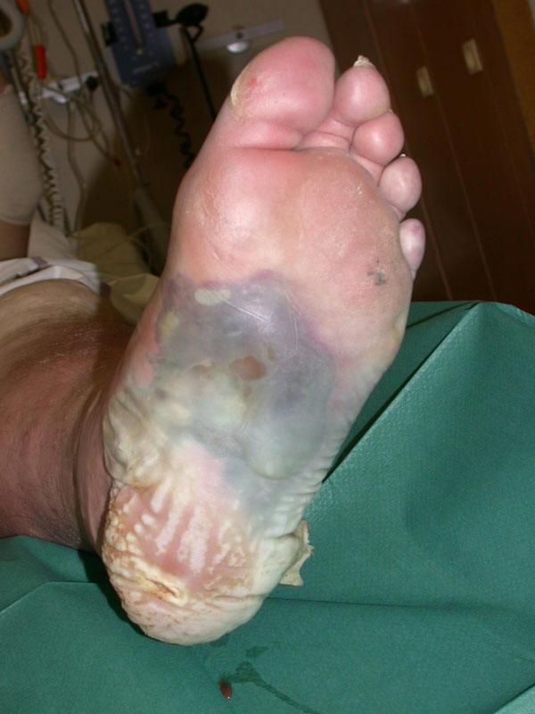 Printout: Diabetic Foot Infections - Management